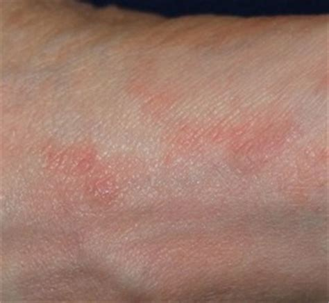 natural relief to herpes zoster picture 14