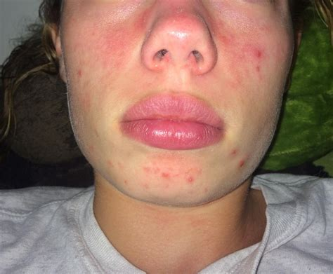 in how many day's peroxita clears acne from the face. picture 9