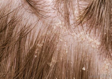 how to treat scalp acne,dandruff and hair loss in cape town picture 2