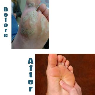 warts and wilson's disease picture 3