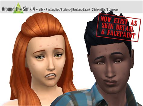 sims 3 acne skin picture 6