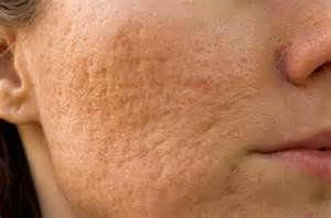skin care for acne scars picture 6