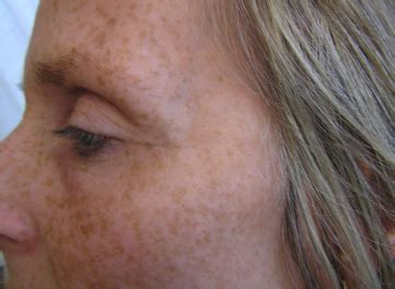 face wrinkles afrer hysterectomy picture 3