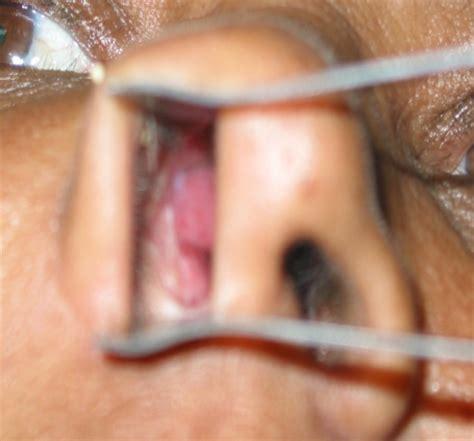 basal skin cancer symptoms picture 7