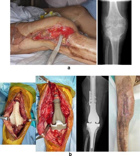 mrsa knee joint surgery picture 1