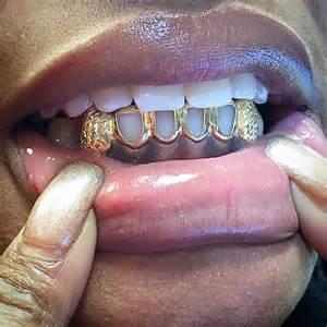 diamond teeth grills picture 13