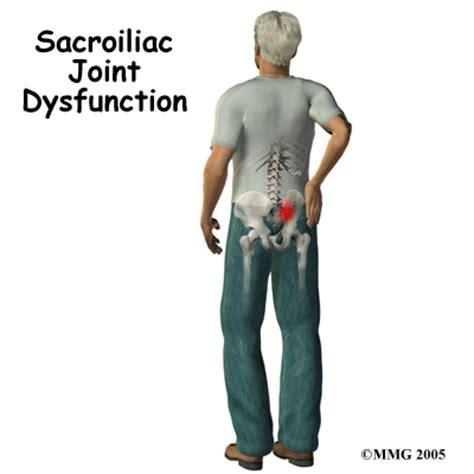 sacroiliac joint arthritis picture 11