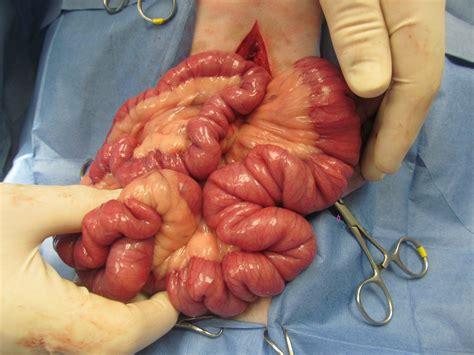 colon cancer surgery prognosis picture 7