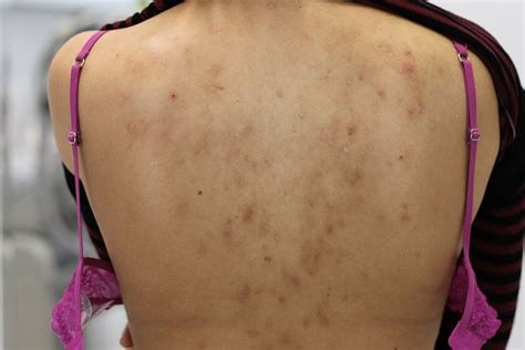 back acne mark picture 3