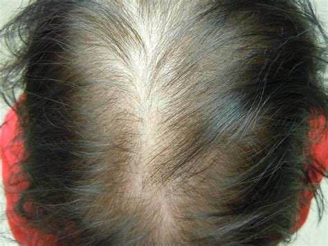 alapica female hair loss picture 15