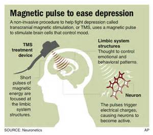 magnetic therapy picture 5
