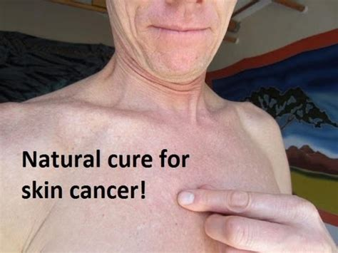 cure skin cancer at home picture 9