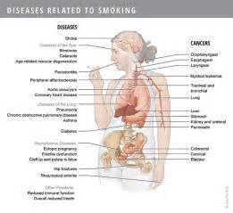 second hand smoke and degenerative back disease picture 3