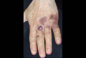 ecchymotic skin lesion picture 2