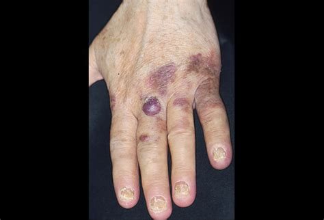 ecchymotic skin lesion picture 1