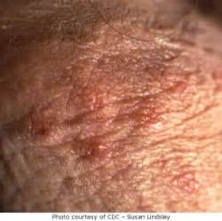 penis with herpes picture 10