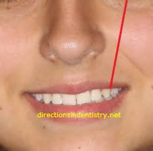 eye teeth picture 1