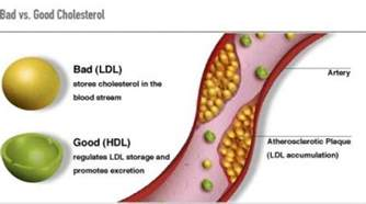 Low hdl cholesterol picture 2