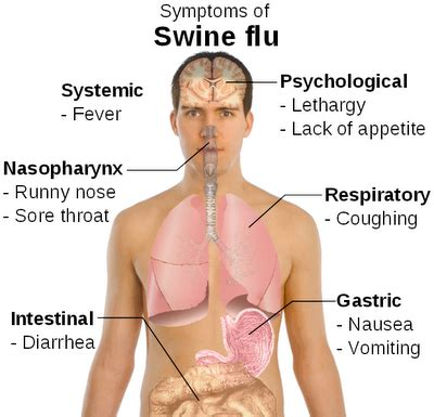 flu symptoms with gastrointestinal symptoms picture 11