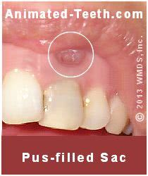 can you cure tooth abscess with oil of picture 10