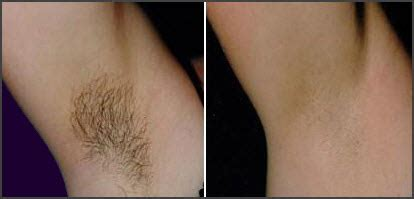 chapel hill laser hair removal picture 13