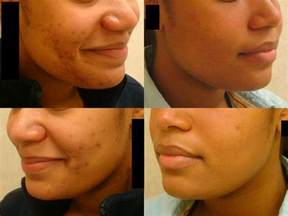 deep acne scars removal picture 17
