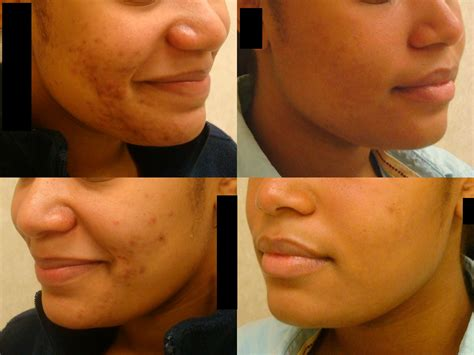 laser hair removal ct picture 1