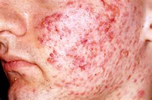 pictures of acne picture 7