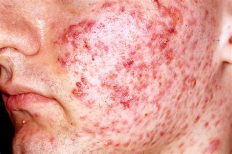 acne vulgaris causes, diagnosis & treatments - clinical picture 2