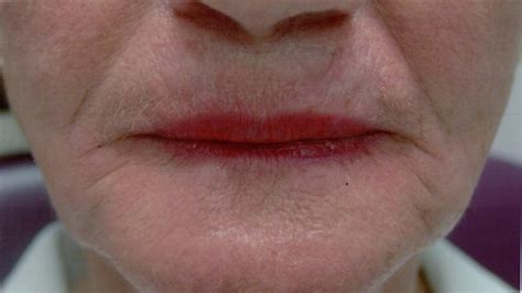 restylane for lips picture 10