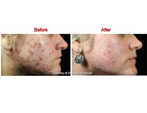 acne after hysterectomy picture 2