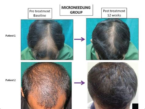 alpha lipoic acid side effects regrow lost hair picture 3