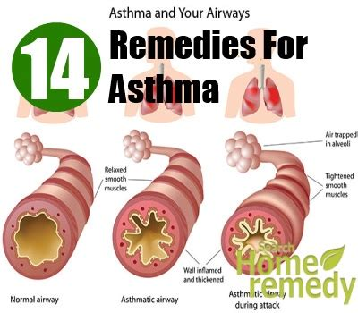 who to cure ako skin asthma picture 2