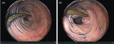 transverse colon pictures picture 5