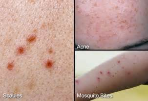 itchiness after acne treatment picture 2