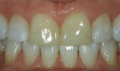 columbia teeth whitening picture 9