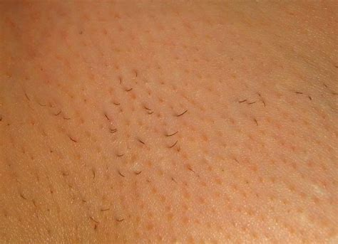 laser hair removal pubic area picture 6