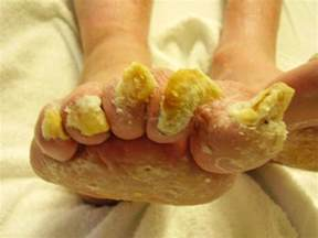 my toes nails are yellowish and the skin under the front picture 7