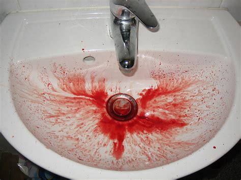 will coffee or tea agrigate nose bleeds picture 15