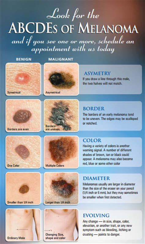 acbd diagnose skin mole picture 6