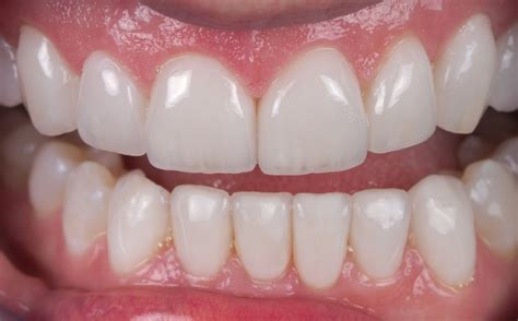 crowns for teeth picture 18