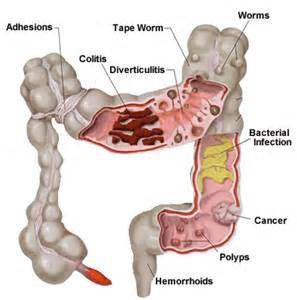 colon helper can the body be dependent on them picture 10