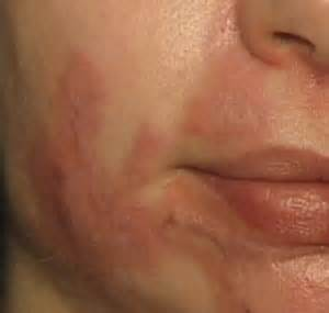 delaware acne scarring picture 11