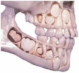 losing teeth growing teeth picture 7