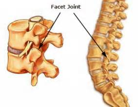 facet joint arthropathy picture 3