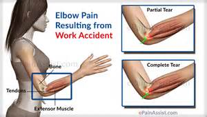 elbow joint pain picture 2