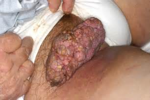 vaginal wart virus picture 3