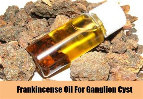 frankincense oil cured ganglion cyst picture 2