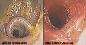 colon cleansing in west virginia picture 5