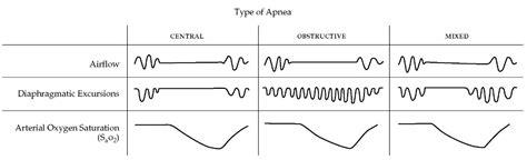 central sleep apnea picture 19